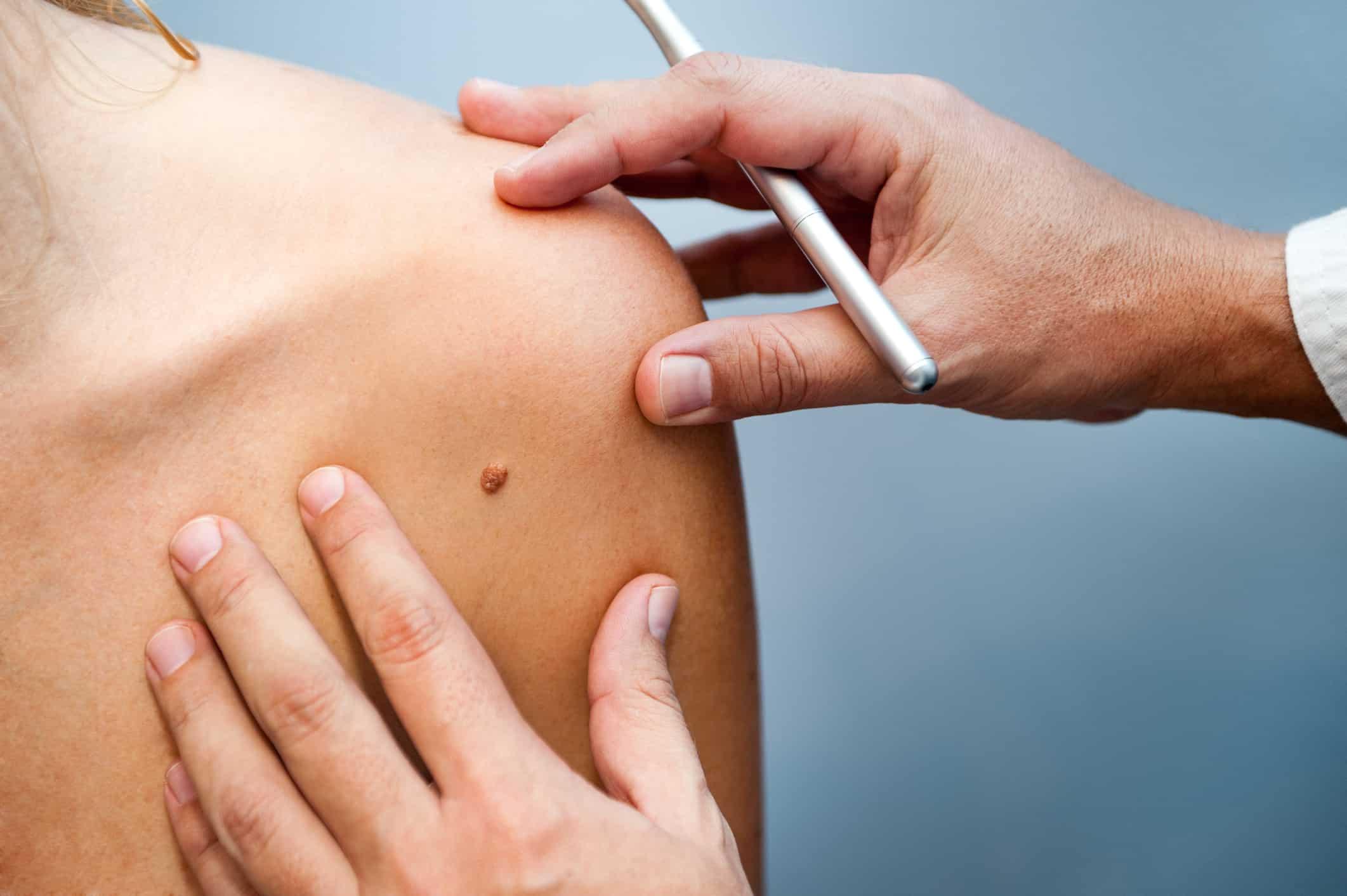 Skin Cancer Awareness Month 2019 National Awareness Days Calendar 2020 2021